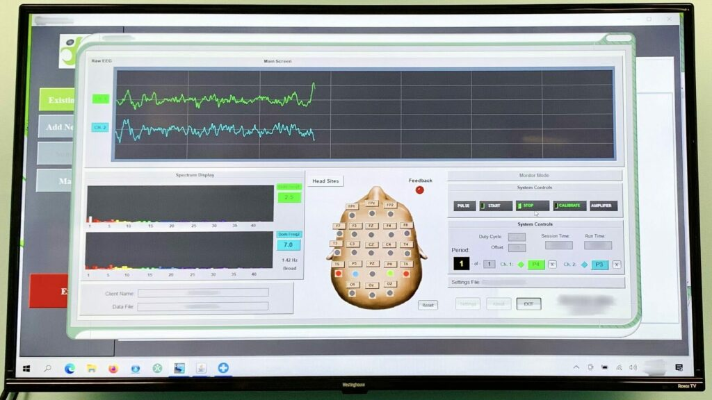 Image of brain waves visualized on a computer screen